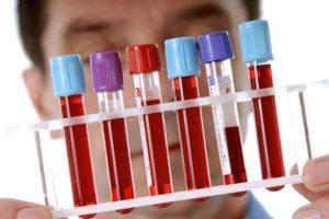 Самарские учёные разработали способ диагностировать рак за 5 минут
